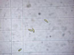 Conidies de tavelure sur grille de cellule de Malassez