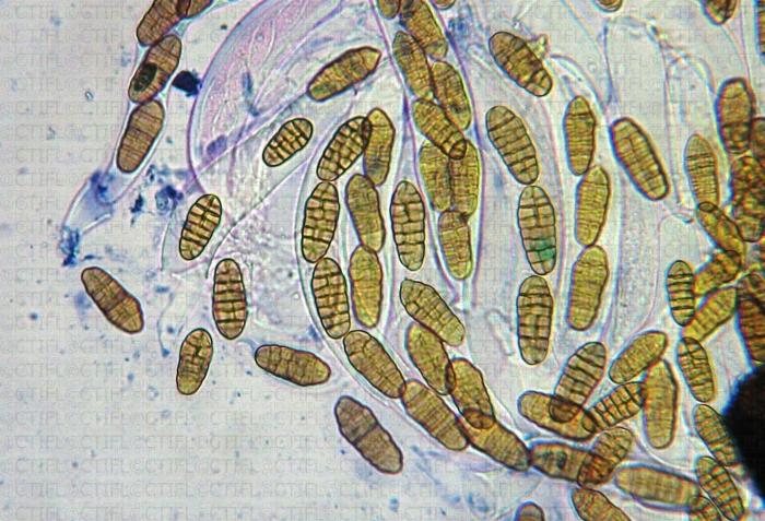 Asques et ascospores de Ploeospora