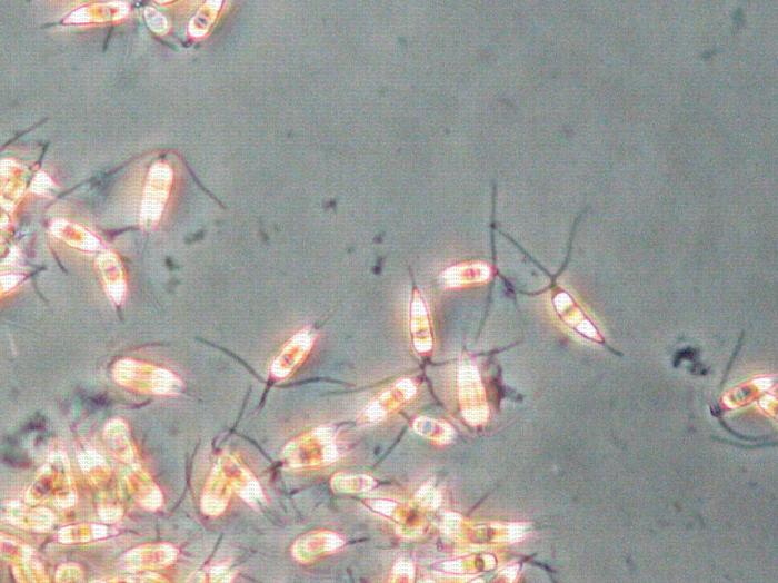 Conidies de Pestalotiopsis (vues au microscope en contraste de phase)