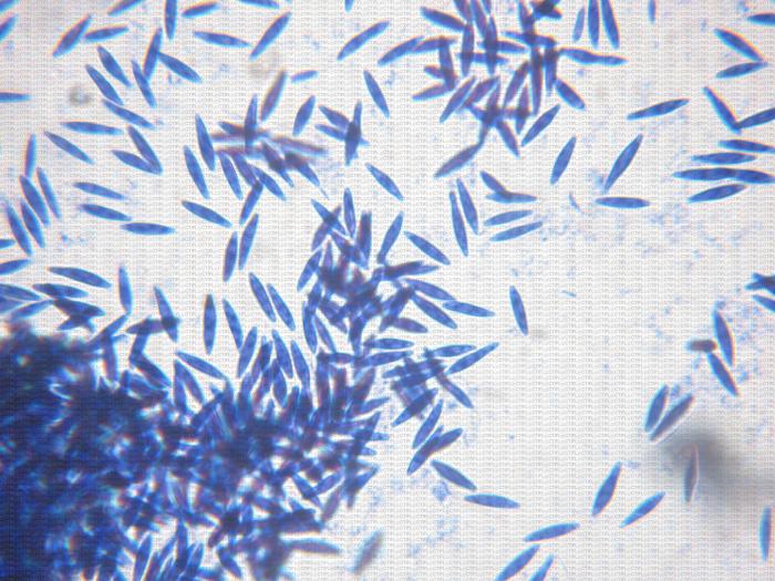 Conidies de Botryosphaeria dothidea